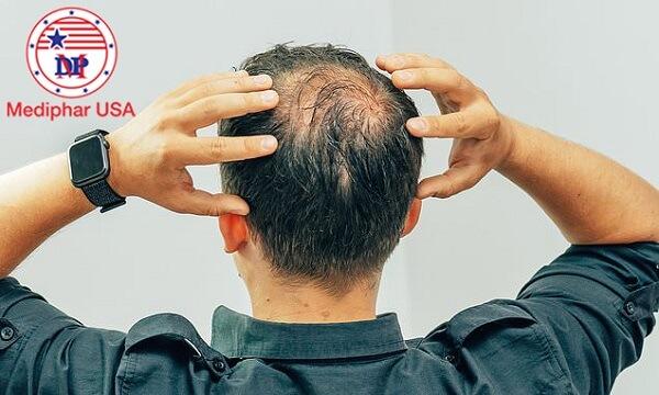 cách làm tóc mọc nhanh cho nam
