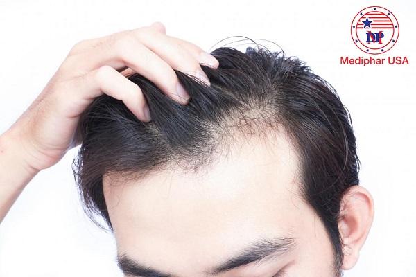thuốc mọc tóc cho nam