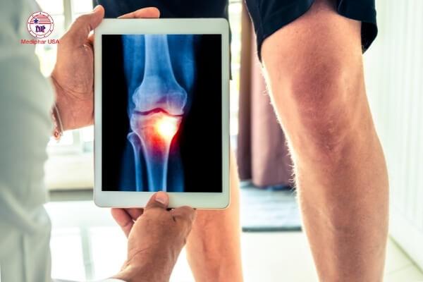vitamin b5 điều trị xương khớp