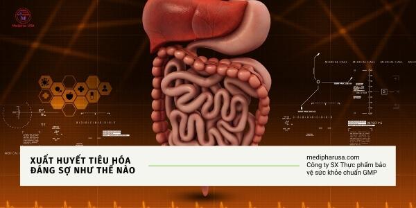 xuất huyết tiêu hóa là gì nên ăn gì