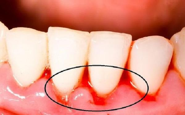 cách điều trị chảy máu chân răng