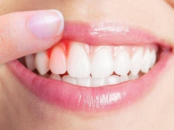 chảy máu chân răng là thiếu chất gì