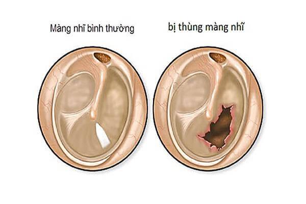 Viêm tai giữa có nguy hiểm không
